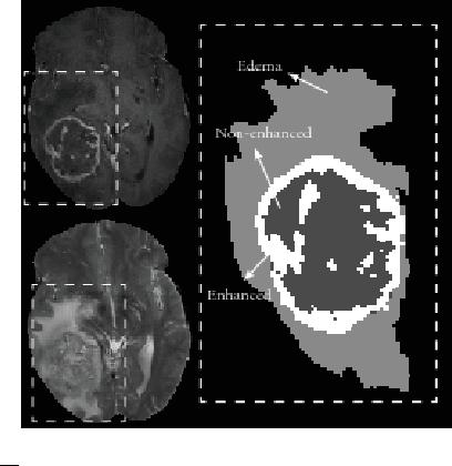 Figure 1 for Within-Brain Classification for Brain Tumor Segmentation