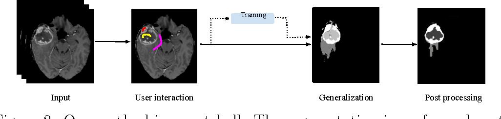 Figure 3 for Within-Brain Classification for Brain Tumor Segmentation