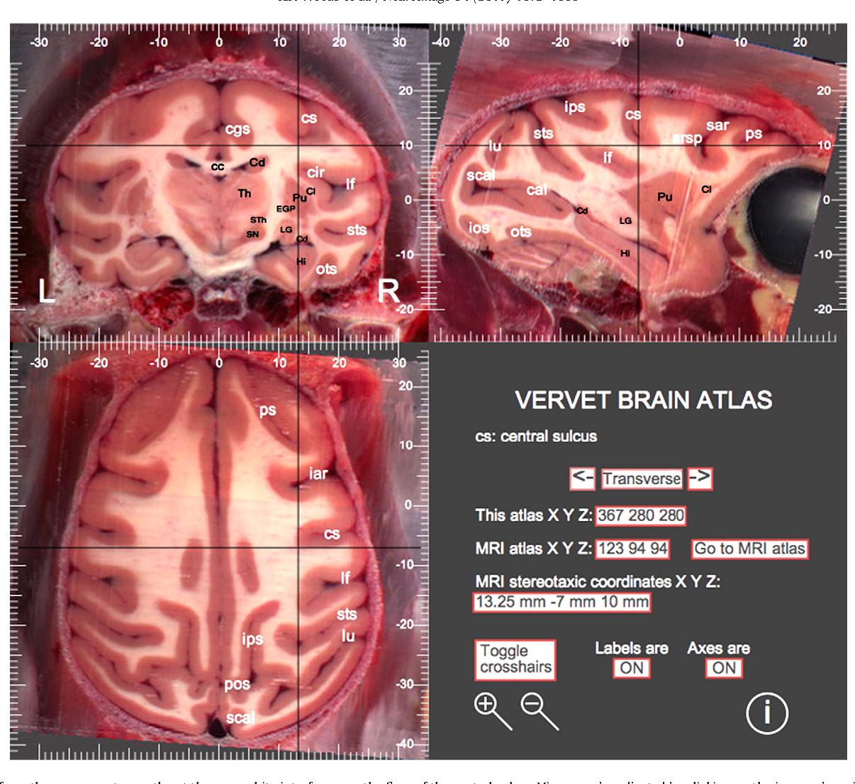 A web-based brain atlas of the vervet monkey, Chlorocebus aethiops ...