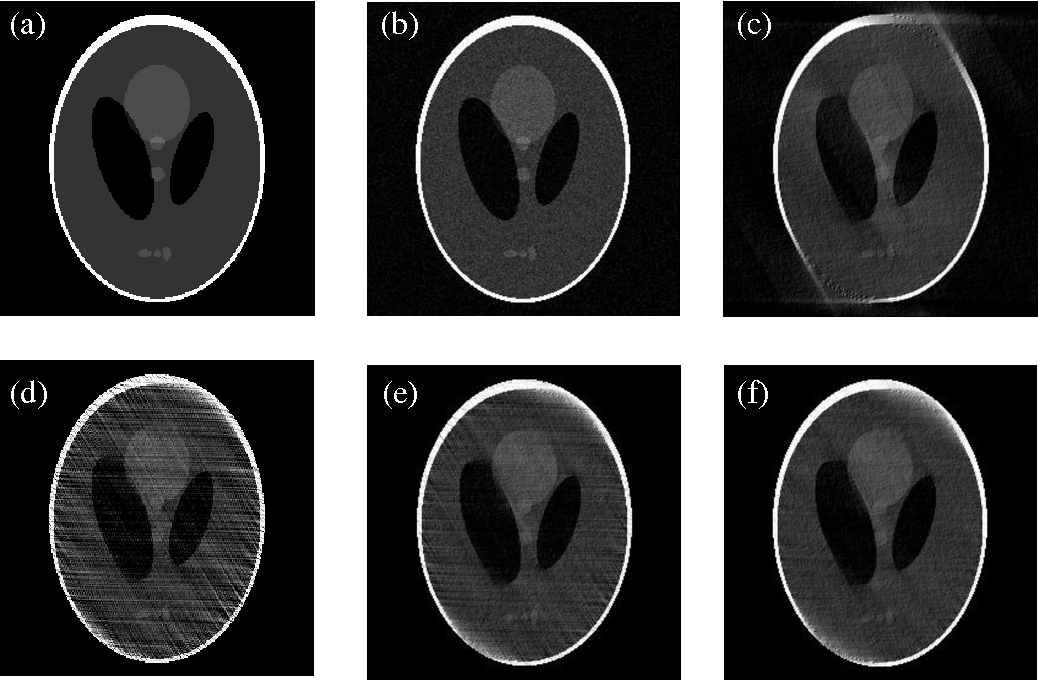 Figure 1 for An iterative algorithm for computed tomography image reconstruction from limited-angle projections
