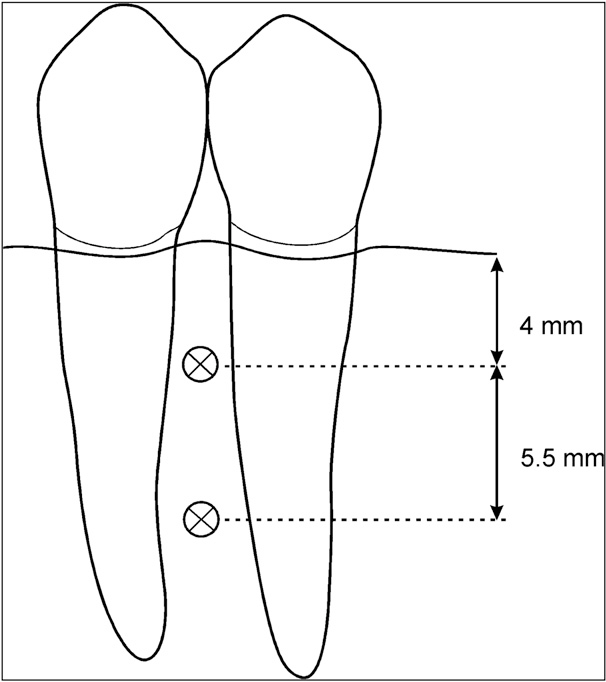 Fig 1. Apical and coronal positioning of miniscrews.