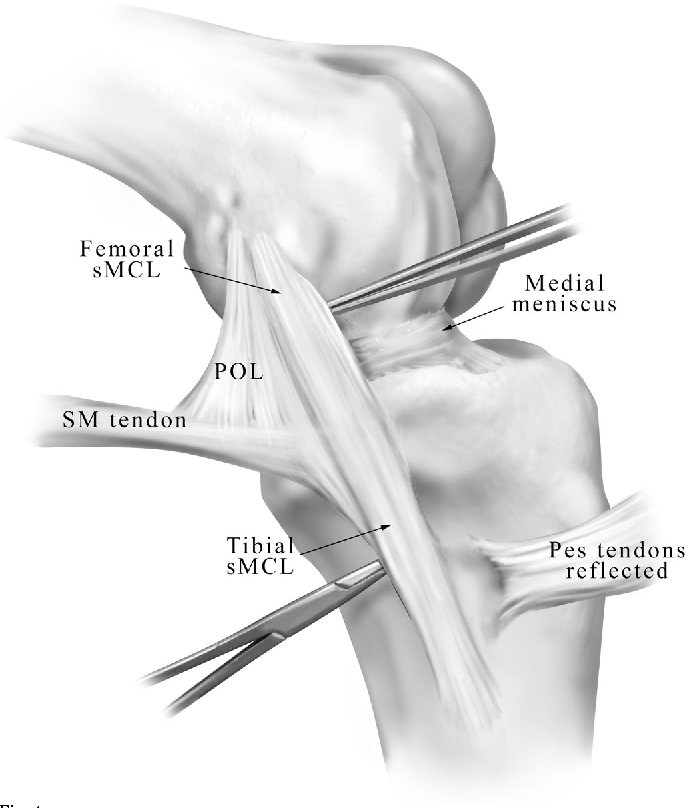 Figure 4 from The anatomy of the medial part of the knee. - Semantic ...