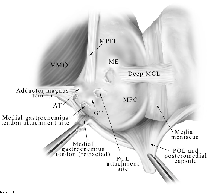 The Anatomy Of The Medial Part Of The Knee Semantic Scholar