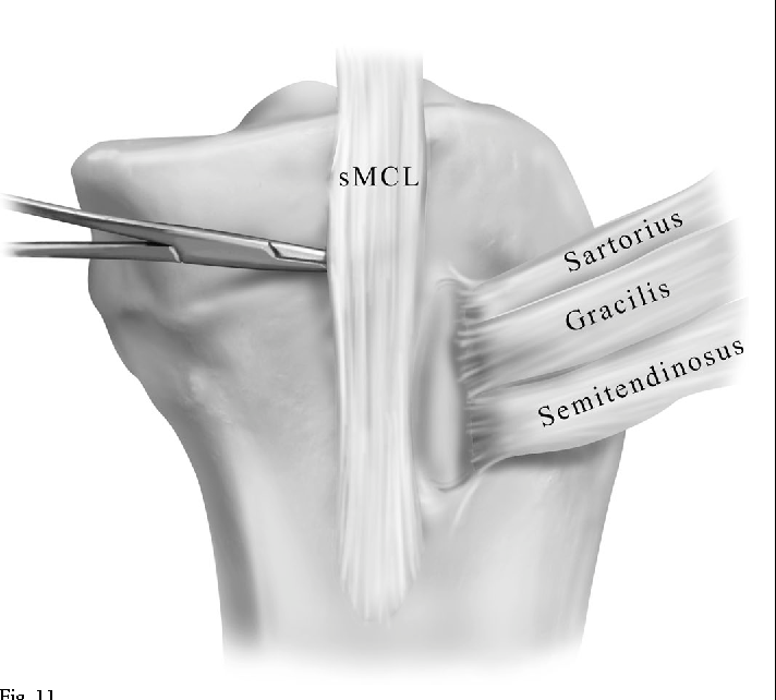 Figure 11 from The anatomy of the medial part of the knee ...