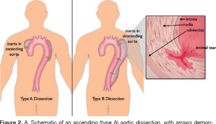 Figure 2 From Cardiology Patient Pages Aortic Dissection