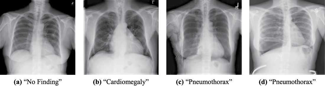Figure 1 for Comparison of Deep Learning Approaches for Multi-Label Chest X-Ray Classification