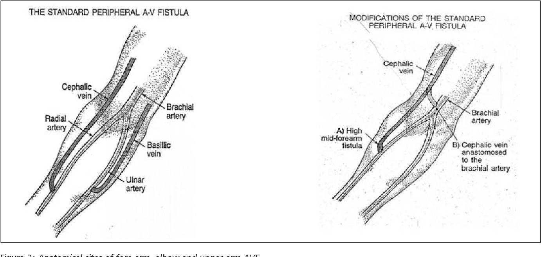 Figure 2 from Vascular access management 1: an overview. - Semantic ...