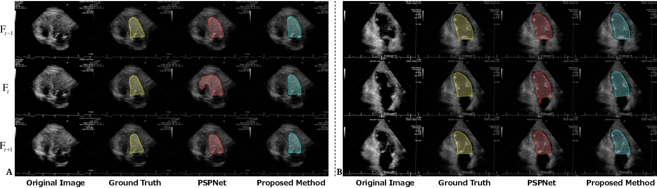 Figure 1 for TAN: Temporal Affine Network for Real-Time Left Ventricle Anatomical Structure Analysis Based on 2D Ultrasound Videos