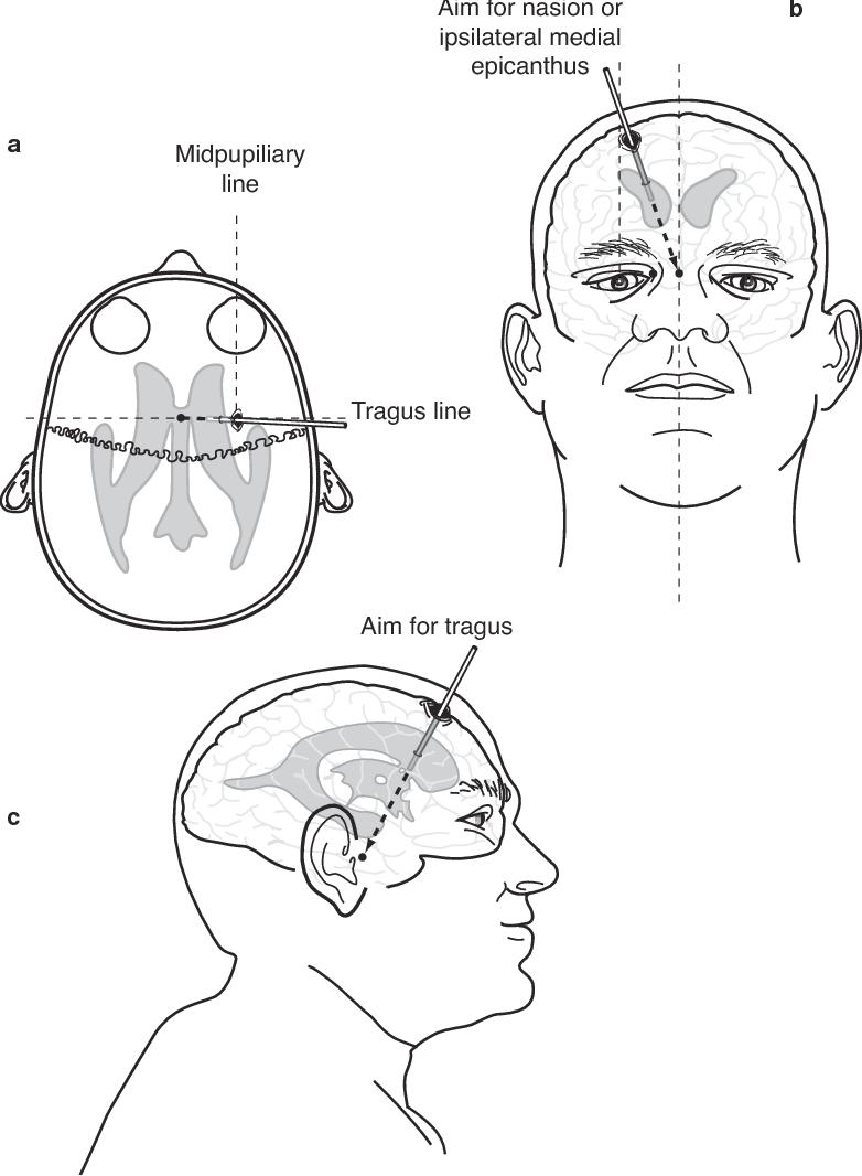 figure 15-2