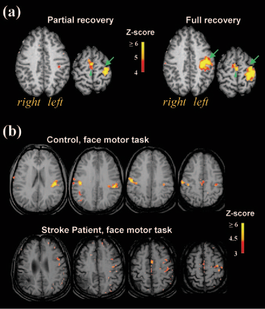 Figure 2 from Functional imaging in stroke recovery. - Semantic Scholar