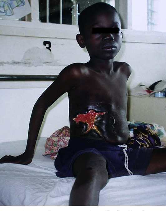 Fig. 1. Plaque of BU on the right flank of a Ghanaian boy. The lesion has characteristic rolled borders and is remarkably stellate, a feature of some plaques.
