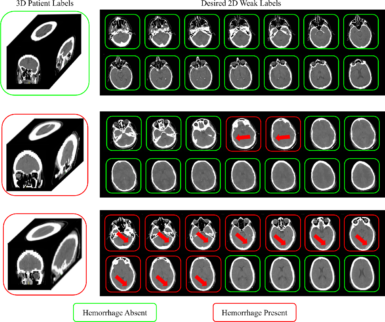 Figure 1 for Extracting 2D weak labels from volume labels using multiple instance learning in CT hemorrhage detection