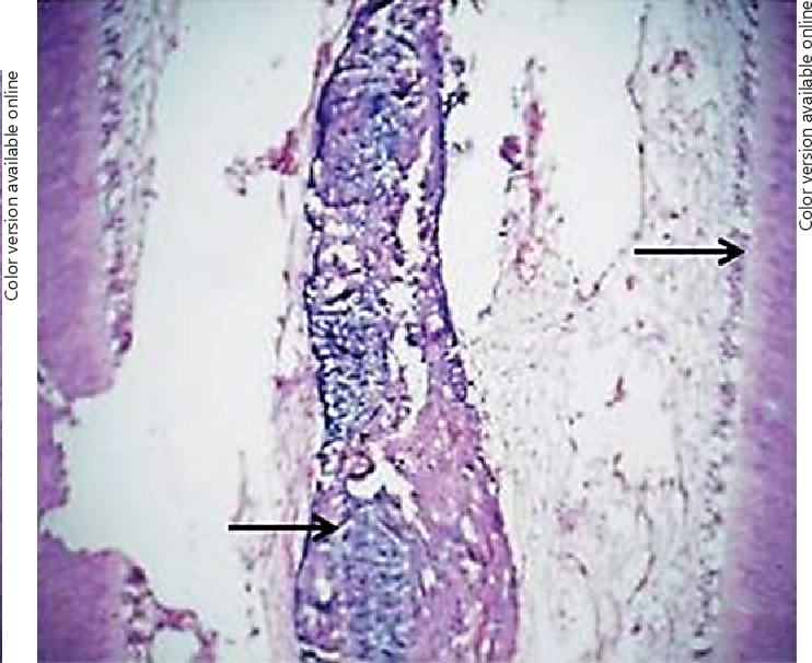 Figure 5 from Histological Evaluation to Study the Effects of Dental