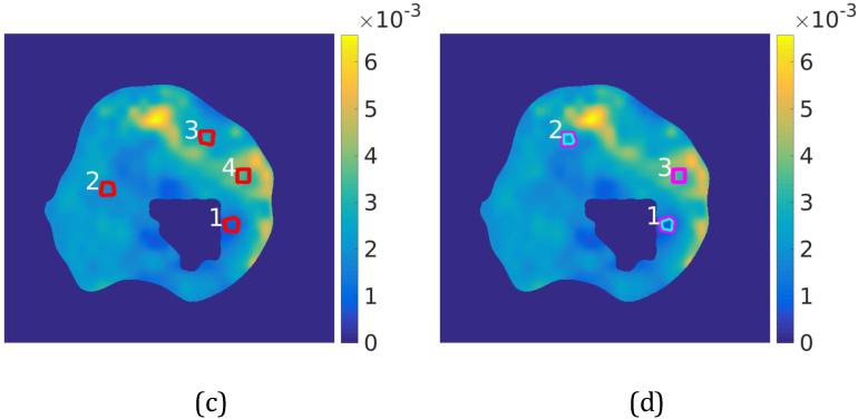Figure 4 for Diffusion-weighted MRI-guided needle biopsies permit quantitative tumor heterogeneity assessment and cell load estimation