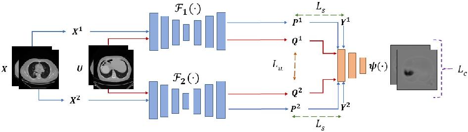Figure 1 for Duo-SegNet: Adversarial Dual-Views for Semi-Supervised Medical Image Segmentation