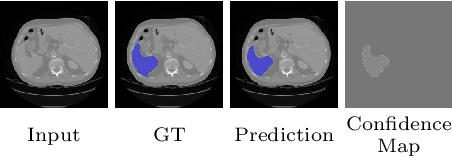Figure 3 for Duo-SegNet: Adversarial Dual-Views for Semi-Supervised Medical Image Segmentation