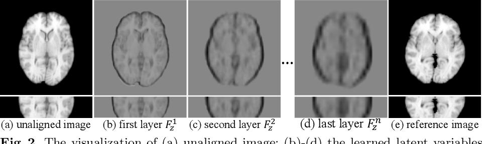Figure 3 for Probabilistic Multilayer Regularization Network for Unsupervised 3D Brain Image Registration