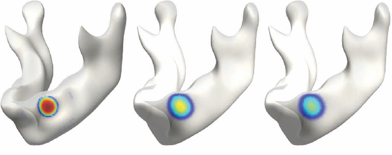Figure 1 for Unified Heat Kernel Regression for Diffusion, Kernel Smoothing and Wavelets on Manifolds and Its Application to Mandible Growth Modeling in CT Images