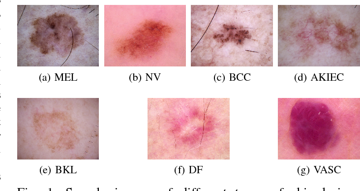Topological approaches to skin disease image analysis