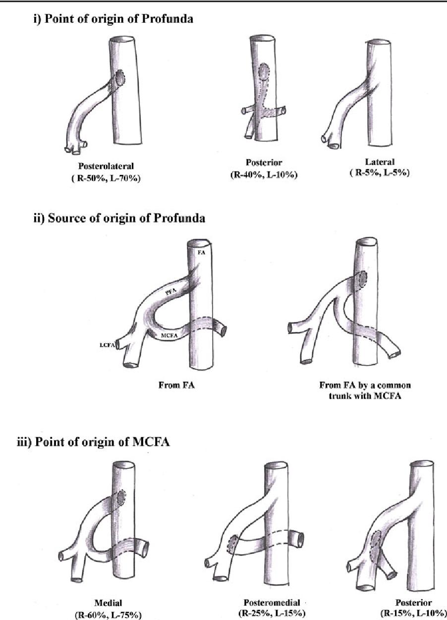Anatomical variations of the profunda femoris artery and its ...