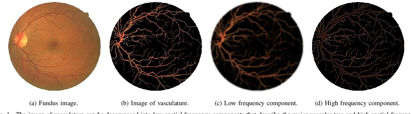 Figure 1 for Accurate Retinal Vessel Segmentation via Octave Convolution Neural Network