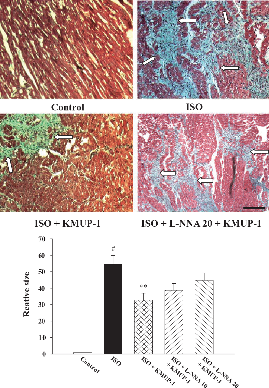 KMUP-1 attenuates isoprenaline-induced cardiac hypertrophy in rats