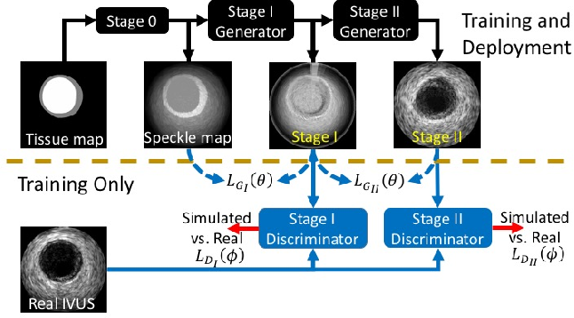 Figure 1 for Simulating Patho-realistic Ultrasound Images using Deep Generative Networks with Adversarial Learning