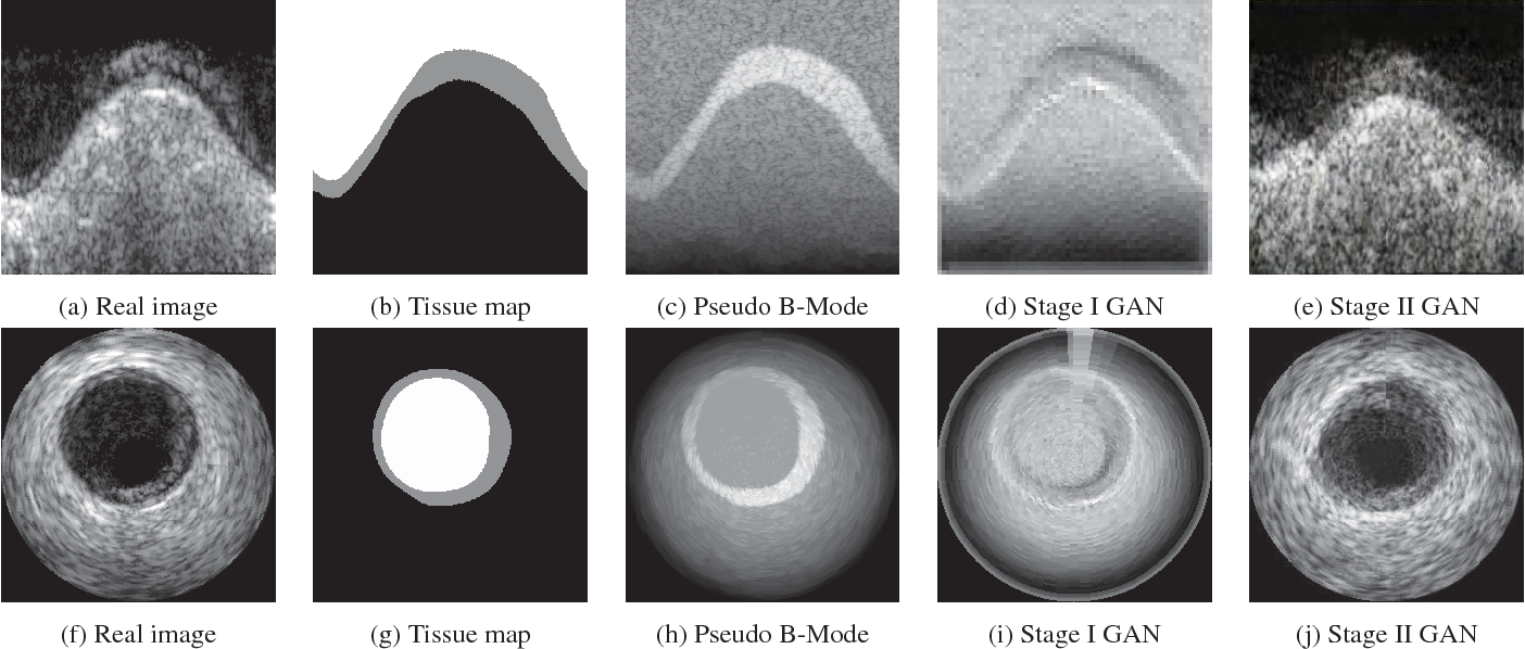 Figure 3 for Simulating Patho-realistic Ultrasound Images using Deep Generative Networks with Adversarial Learning