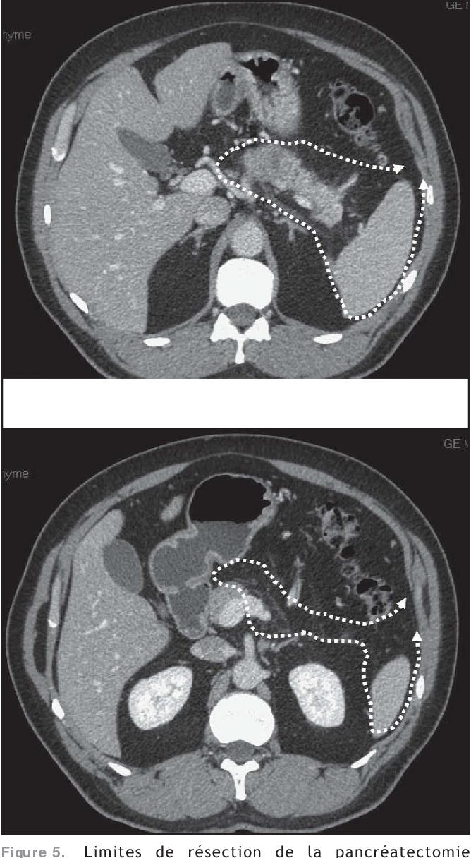 Figure 5. Limites de résection de la pancréatectomie gauche au contact des vaisseaux coeliomésentériques.
