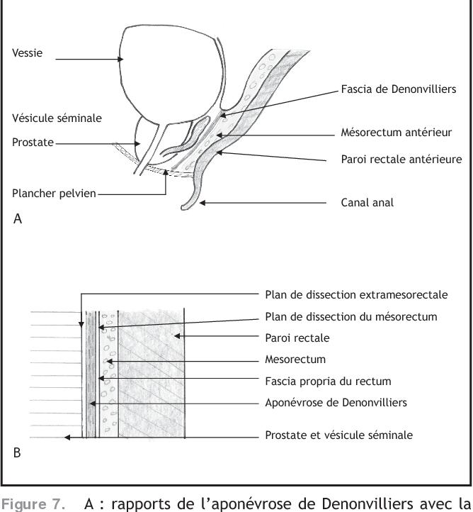 Figure 7. A : rapports de l'aponévrose de Denonvilliers avec la paroi rectale antérieure et le plan vésico-prostatique. B : Rapports de l'aponévrose de Denonvilliers avec le fascia recti.