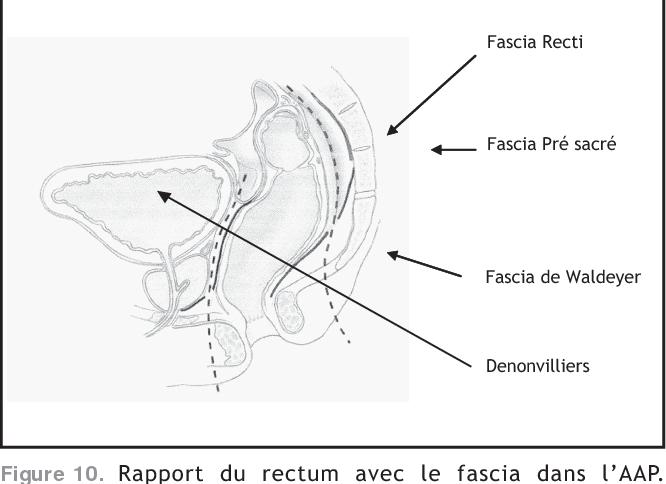 Figure 10. Rapport du rectum avec le fascia dans l'AAP. D'après Radcliffe et al. [637].