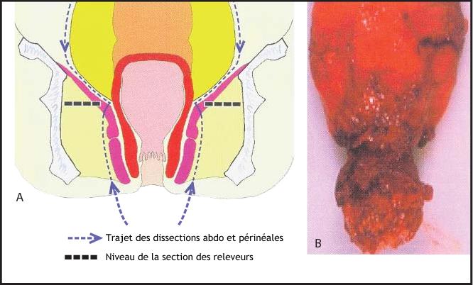 Figure 9. Une AAP mal réalisée (A) expose à un risque de dissection trop proche du rectum (B). D'après Holm T et al. [638]