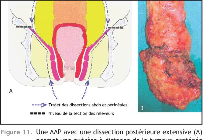 Figure 11. Une AAP avec une dissection postérieure extensive (A) permet une exérèse à distance de la tumeur, protégée par les releveurs (B). D'après Holm et al. [638]
