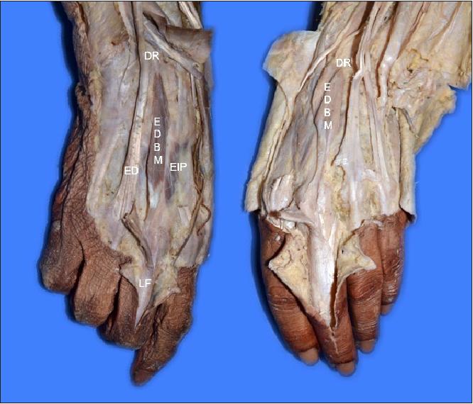Figure 1 From Bilateral Extensor Digitorum Brevis Manus Case