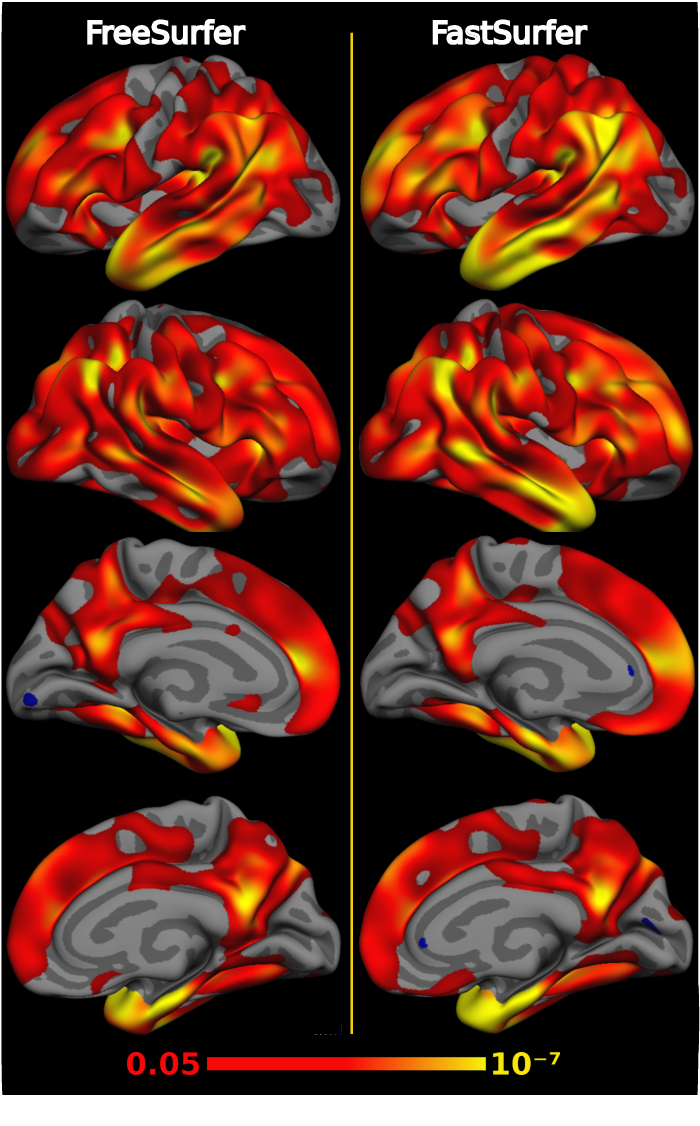 Figure 4 for FastSurfer -- A fast and accurate deep learning based neuroimaging pipeline