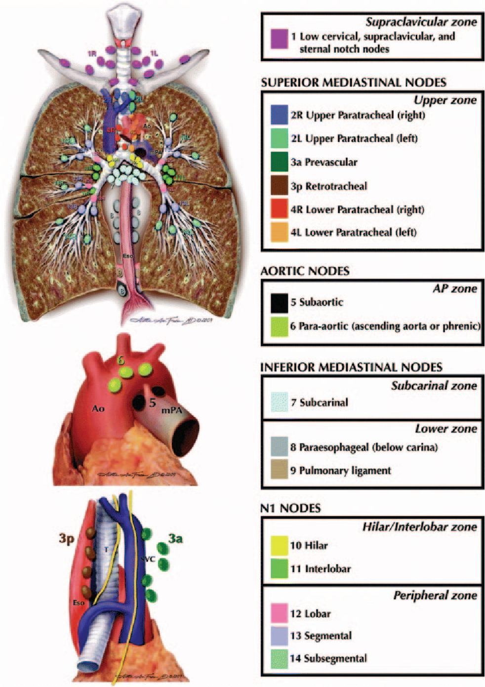 Figure 4 from The new lung cancer staging system. - Semantic Scholar