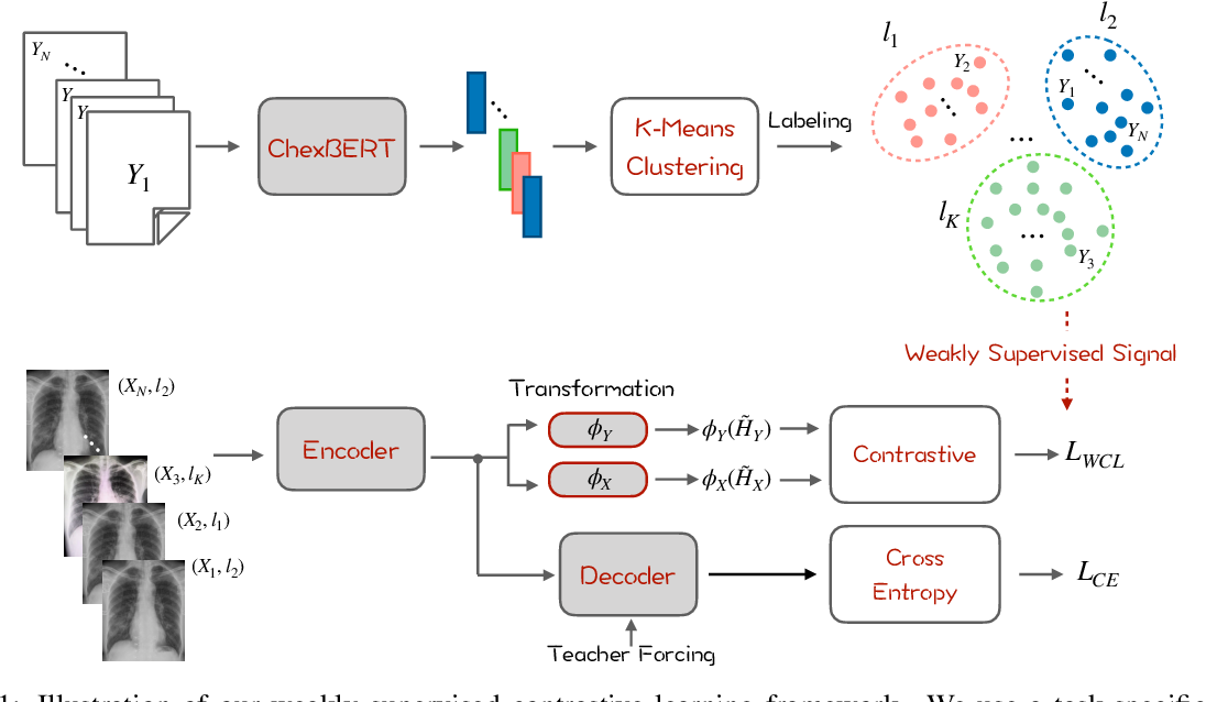 Figure 1 for Weakly Supervised Contrastive Learning for Chest X-Ray Report Generation