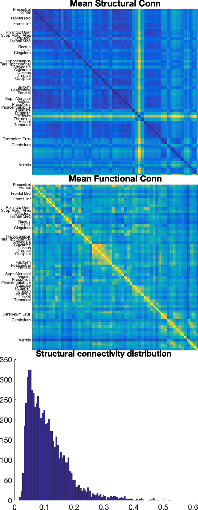 Figure 2 for Single-participant structural connectivity matrices lead to greater accuracy in classification of participants than function in autism in MRI