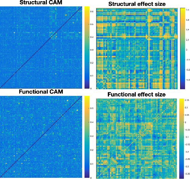 Figure 4 for Single-participant structural connectivity matrices lead to greater accuracy in classification of participants than function in autism in MRI
