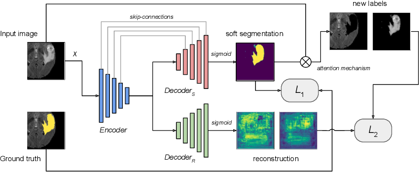 Figure 1 for Multi-Task Attention-Based Semi-Supervised Learning for Medical Image Segmentation