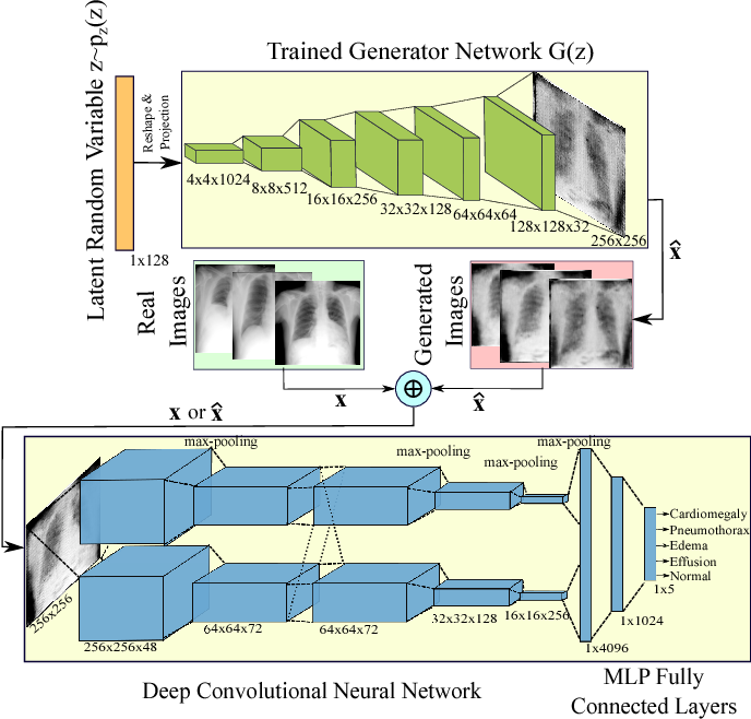 Figure 3 for Generalization of Deep Neural Networks for Chest Pathology Classification in X-Rays Using Generative Adversarial Networks