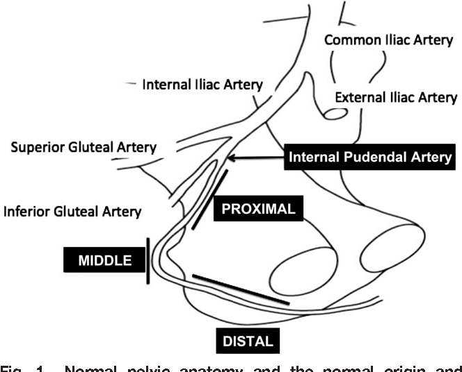 Characterization Of Internal Pudendal Artery Atherosclerosis Using
