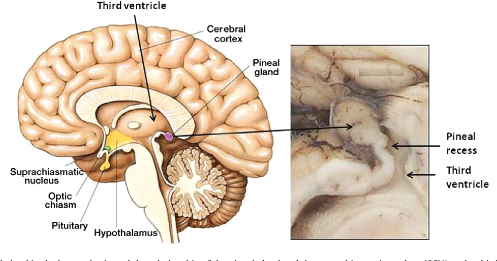 Csf Generation By Pineal Gland Results In A Robust Melatonin
