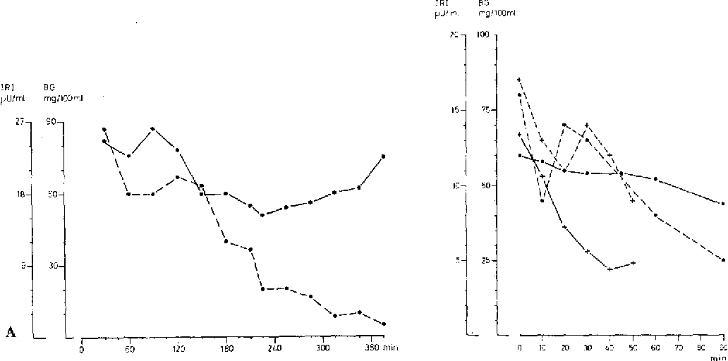 Fig. 2A and B. Blood glucose ( - - - - - - ) and plasma insulin ( - - - - - - ) levels in case I (e) and case II (+) after subtotal pancreatectomy. A: Prolonged fasting; B: Leucine tolerance test. For methods see text