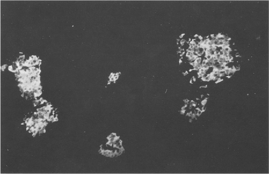 Fig. 3. Insulin-producing cells in the pancreatic tissue shown by indirect immuno-fluorescence: The islets are significantly enlarged and show irregular excrescences (x 176)
