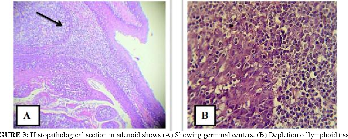Figure 3 From Bacterial Profile Associated With Chronic Tonsillitis