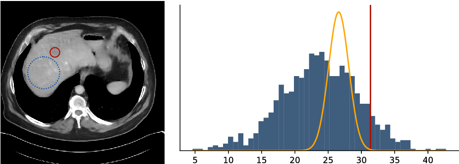 Figure 4 for Deep Bayesian Inversion