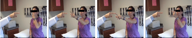Figure 1 for A Video-Based Method for Objectively Rating Ataxia
