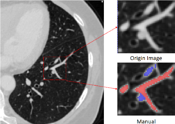 Figure 1 for Automatic Pulmonary Artery and Vein Separation Algorithm Based on Multitask Classification Network and Topology Reconstruction in Chest CT Images