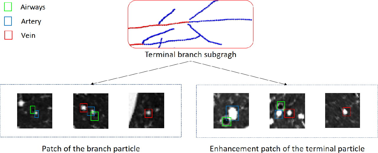 Figure 3 for Automatic Pulmonary Artery and Vein Separation Algorithm Based on Multitask Classification Network and Topology Reconstruction in Chest CT Images